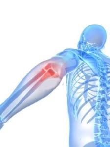 Pijnlijke elleboog illustratie1 225x300 - Fysiotherapie Heerhugowaard