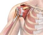 im schouder 5 - Impingement van de schouder