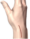 quervain 3 - Quervain tendinitis