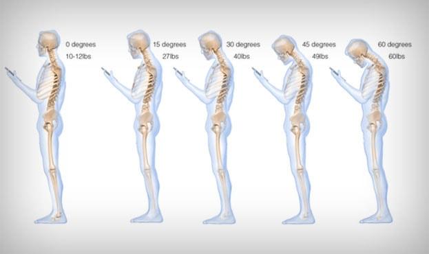 Nekpijn - Rug- en nekpijn? Misschien komt het door je smartphone!