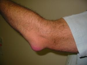 fysiotherapeut heerhugowaard